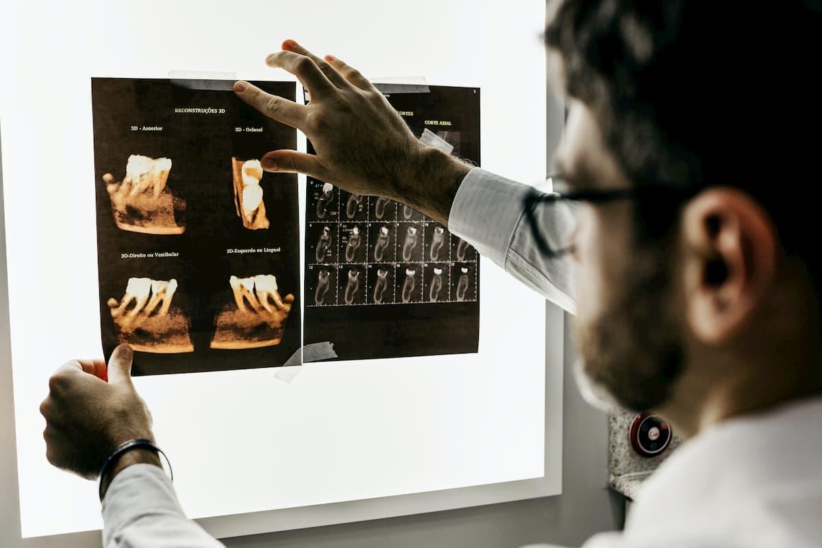 放射線技師ががんを検出しやすくするAI
